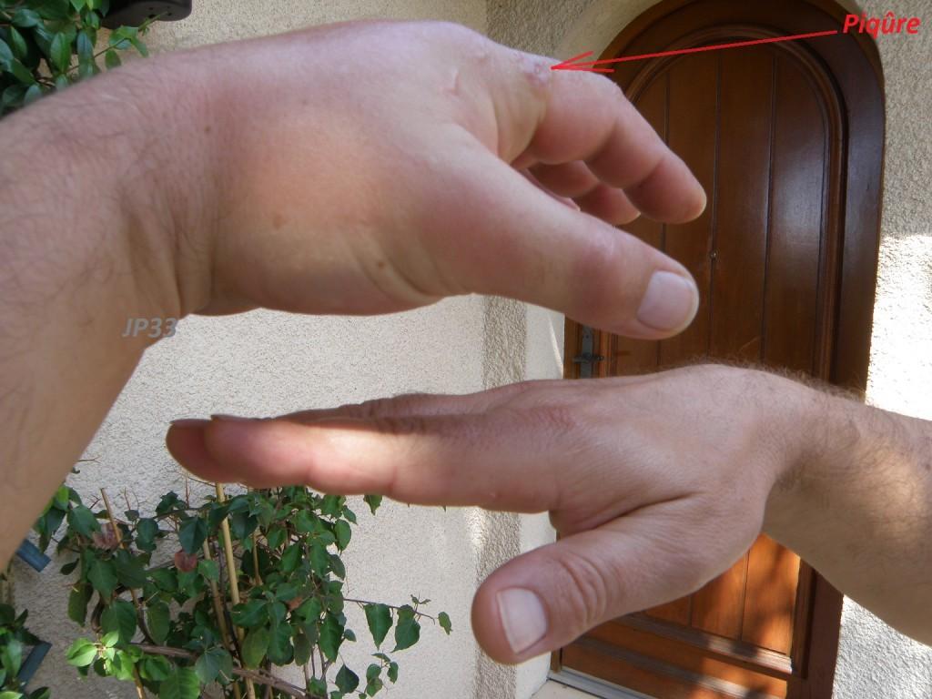 Effet d'une piqûre sur une main gauche.